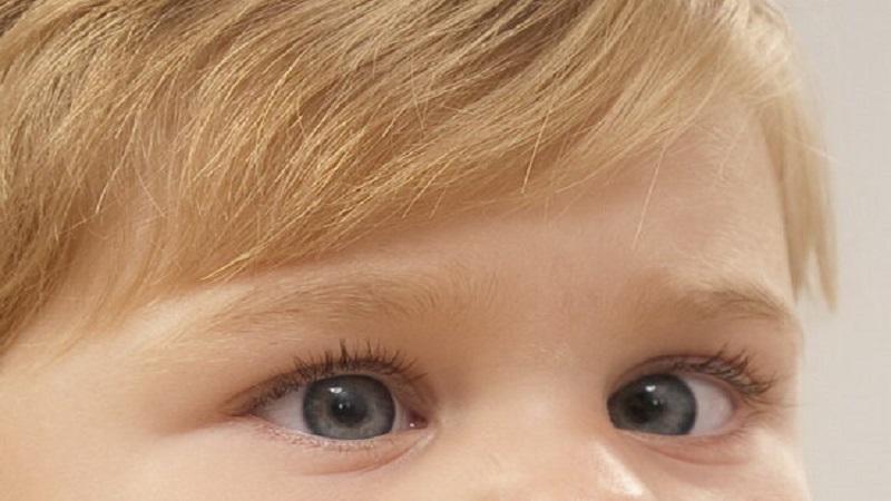 تنبلی چشم در کودکان