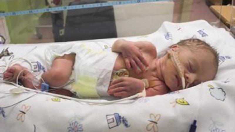 زجر تنفسی نوزادان