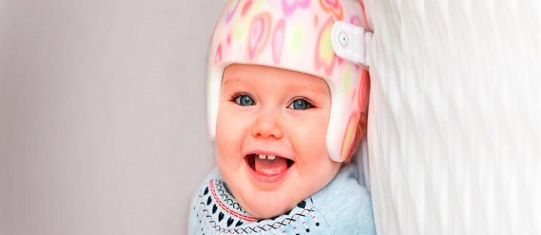 صاف شدن سر نوزاد (پلاژیوسفالی)