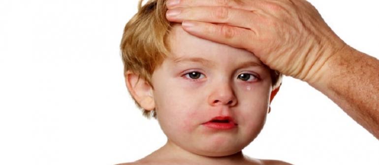 عفونتهای ویروسی و باکتریال کودکان